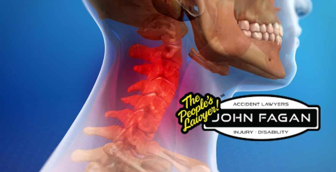 Whiplash is the name given to a group of symptoms that occur when the neck jolts following an injury or an #accident
